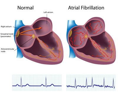 doctor_michael_jonas_israel_atrial-fibrillation