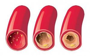 heart-diseases_doctor_michael_jonas_israel_pad_definition